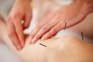 Acupuncture Tarzana