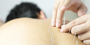 best accupuncture Tarzana California