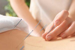 accupuncture Glendale CA